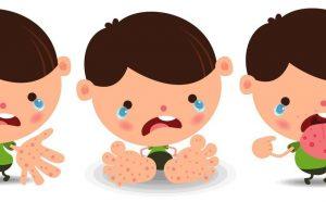 Bài tuyên truyền phòng chống bệnh tay chân miệng